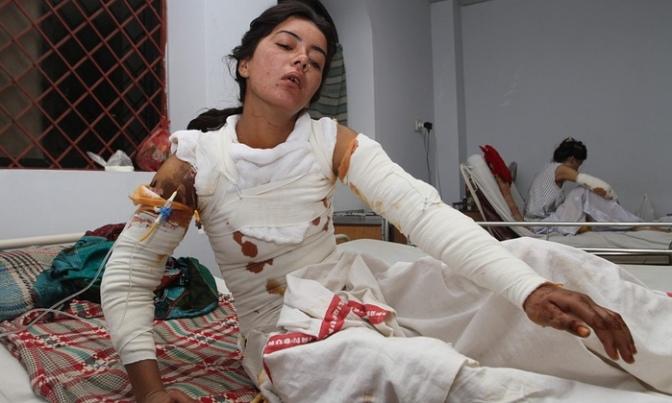Mulher paquistanesa incendiada por pretendente abandonado