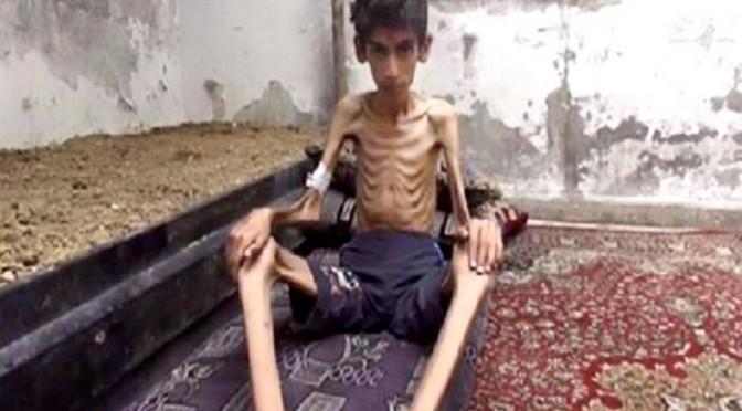 Síria autoriza ajuda a cidades sitiadas onde 40 mil estão morrendo de fome