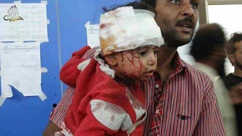Cerca de 50 mortos por mísseis que atingiram centros médicos e escolas em cidades sírias