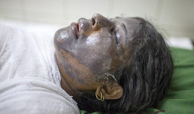Horror: Marido lança ácido no rosto de sua jovem esposa em Bangladesh após uma disputa sobre seu dote