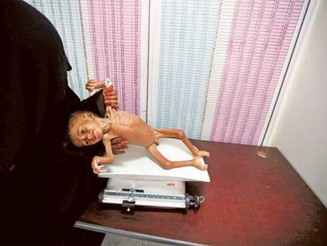 Fome deve matar mais iemenitas do que a guerra