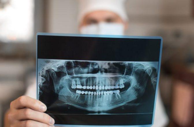 """Dentista sueco demitido por revelar que 80% das """"crianças imigrantes"""" são na verdade adultas"""